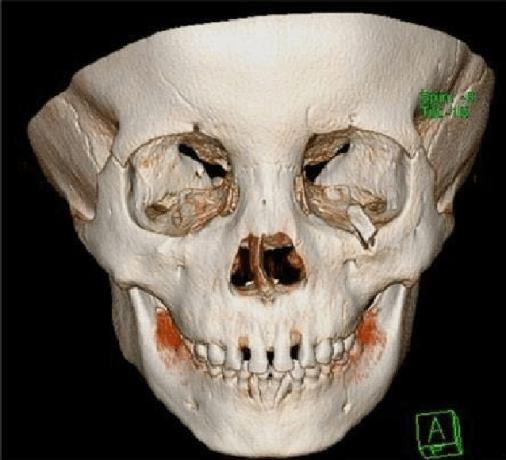 3D-bone