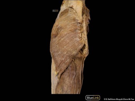 UL Lumbar Spine Hip and Knee 3